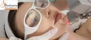 Laser Acne Scar Removal Treatments Cost in Delhi